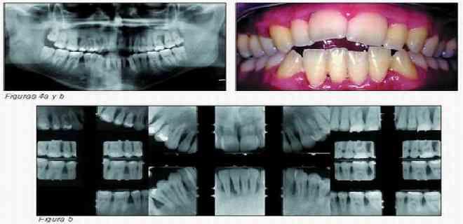 Descubren cómo la periodontitis puede causar demencia